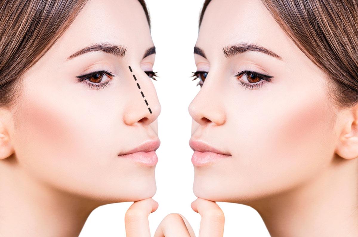 cirugia de nariz precio en nicaragua